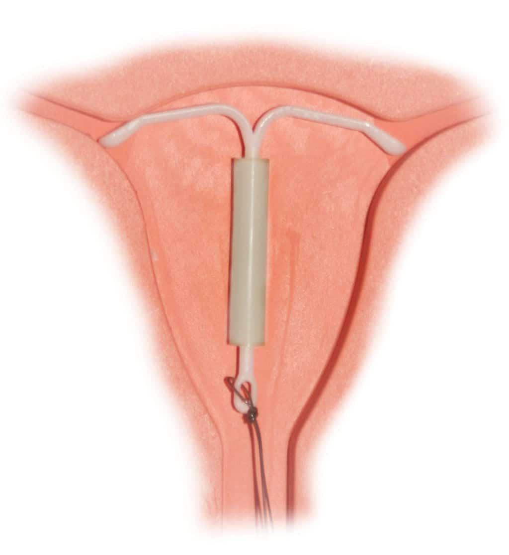 Esto sería el DIU hormonal Mirena - Hormonspiral